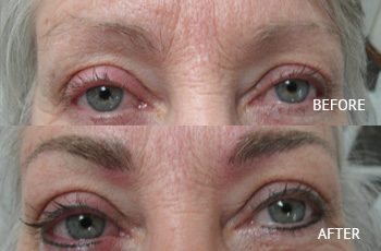 Corrective Permanent Makeup in Eau Claire, Wisconsin